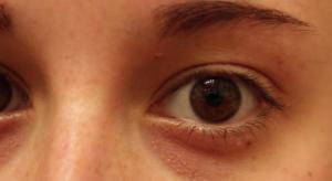 huff-eye